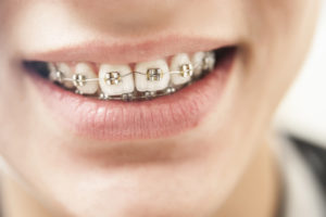 What Age Do Kids Get Braces? Your Questions, Answered