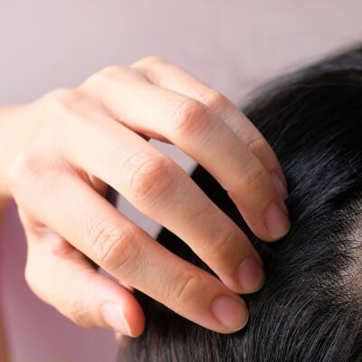 Losing Locks: Everything You Need to Know About Female Baldness